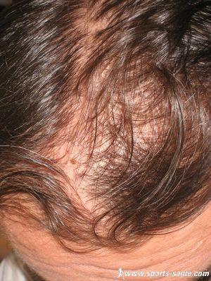 Lhuile de lorange pour les cheveux le prix
