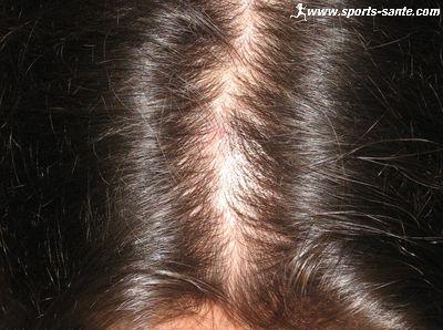 les causes de chute de cheveux