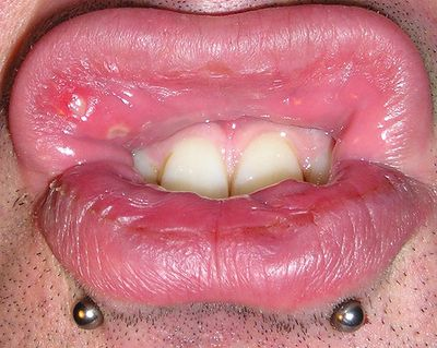 Herpes buccal interieur bouche 28 images 7 remedies for Interieur de la bouche