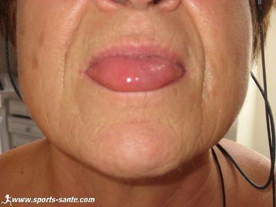 Photo de piqûre de guêpe sur la langue