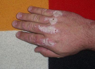 Les dattes à atopitcheskom la dermatite